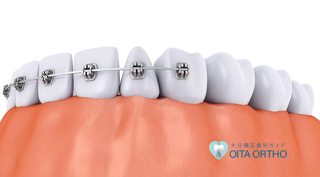 歯が動く仕組み