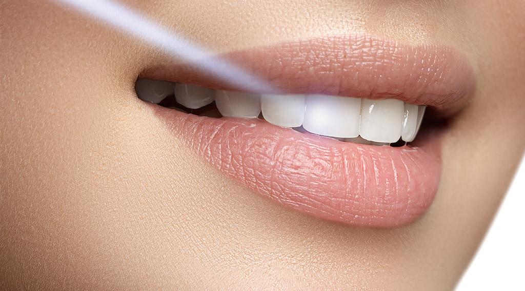 矯正歯科はなぜ必要か