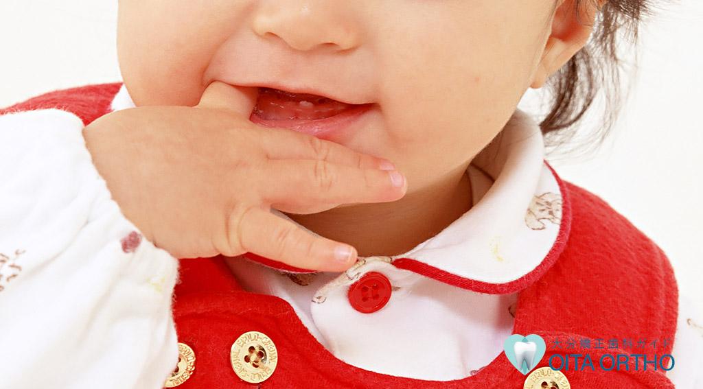 指しゃぶりと不正歯列の関係
