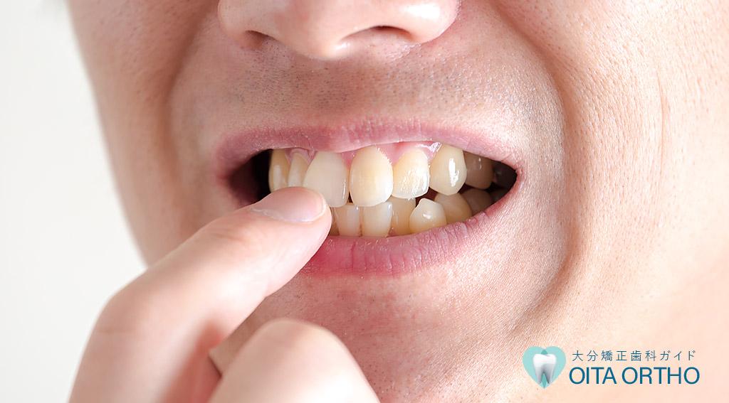 出っ歯の方は裏側矯正がおすすめ