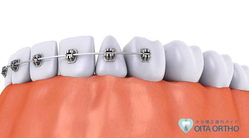 差し歯があっても矯正歯科治療は可能か?