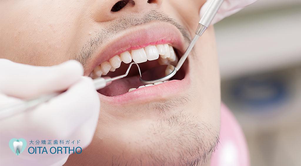 歯列矯正で抜歯をする理由